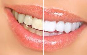 blanqueamiento-dental-en-barcelona-dientes-blancos-antes-y-despues-arsuaga