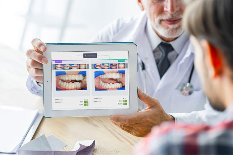 seguimiento-virtual-dental-monitoring-barcelona-clinica-dental